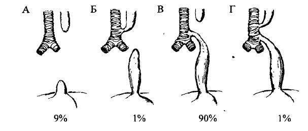 Схематичне зображення взаємовідношень між трахеєю, стравоходом та фістулою