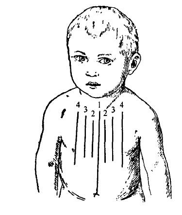 Топографічні лінії на передній поверхні грудної клітки