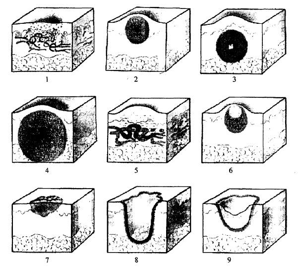 Схематичне зображення первинних і вторинних елементів висипу