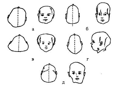 Форми аномалій черепа