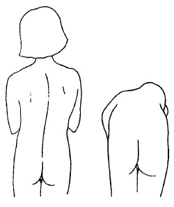 Сколіоз анатомічного (структурного) характеру