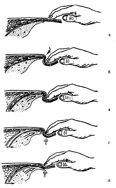 Діафрагмально-інспіраторна пальпація печінки